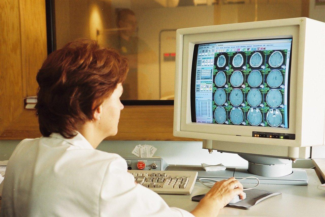 גלי מוח