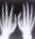 רנטגן ידיים גדול