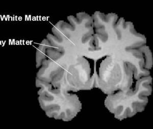מחלות של החומר הלבן במוח